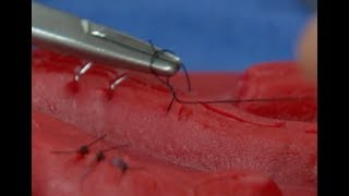 How Stitches Work