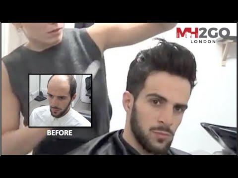 Mayroon akong alopecia kung paano palaguin buhok