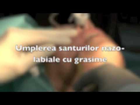Pin pentru tratamentul artrozei