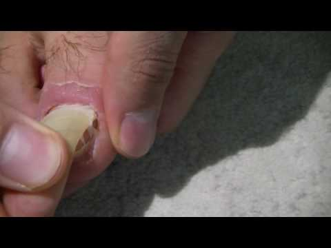 Warum beim Kind slojatsja die Nägel auf den Beinen, wie zu behandeln