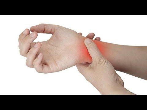 El coste de la eliminación de la hernia intervertebral