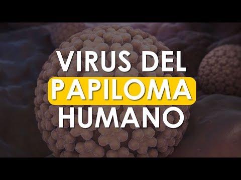 Virus papiloma nivel 1