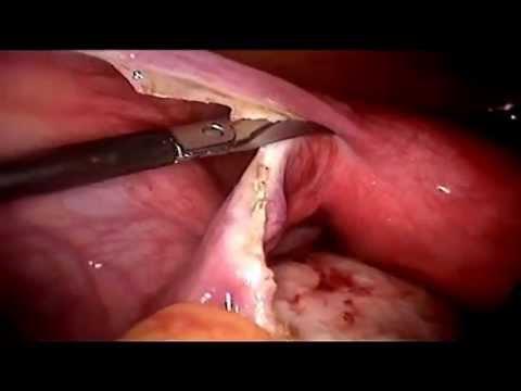 Screening papilloma virus positivo