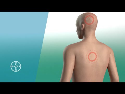 Omsk Ultraschall des Schultergelenkes