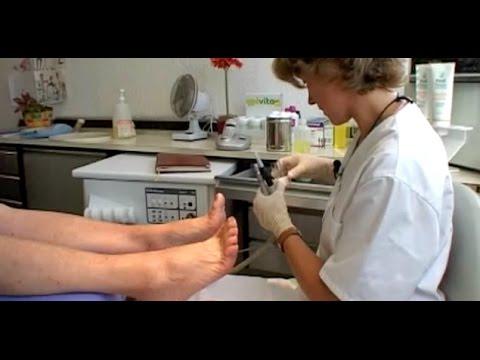 La préparation du microorganisme végétal des ongles lactif darrêt