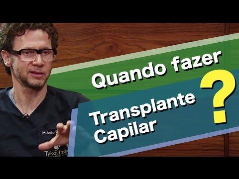 Quando recorrer ao transplante capilar?