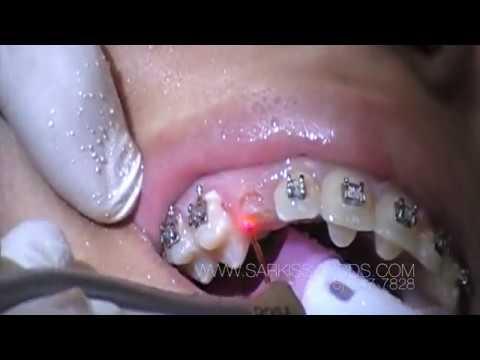 Laser Canine Exposure in Orthodontics