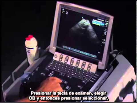 Video clip della prostata porno di una moglie al marito