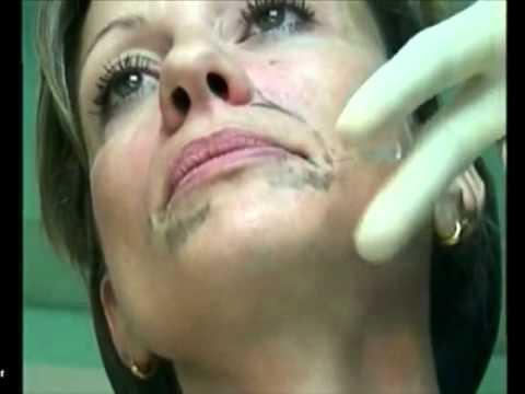 La chirurgie vasculeuse à severodonetske