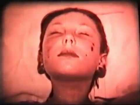 Бадяга и перекись водорода от пигментных пятен на лице отзывы