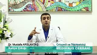 Kalça Çıkığı - Dr. Mustafa ARSLANTAŞ