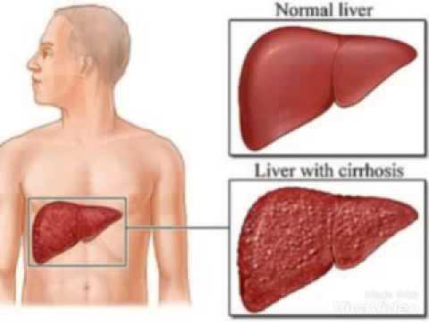 ยาแก้ปวดลิ่มเลือดอุดตัน