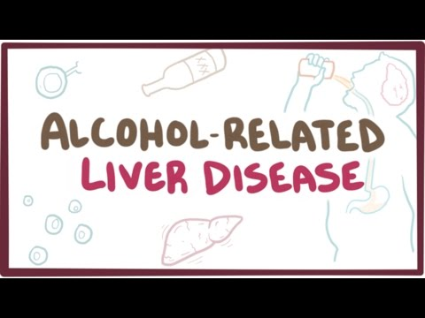 Video Alcohol-related liver disease - causes, symptoms & pathology