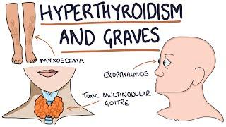 Understanding Hyperthyroidism and Graves Disease