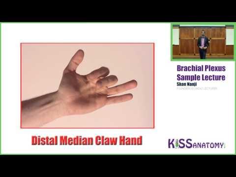 Brachial Plexus - Anatomy - Medbullets Step 1