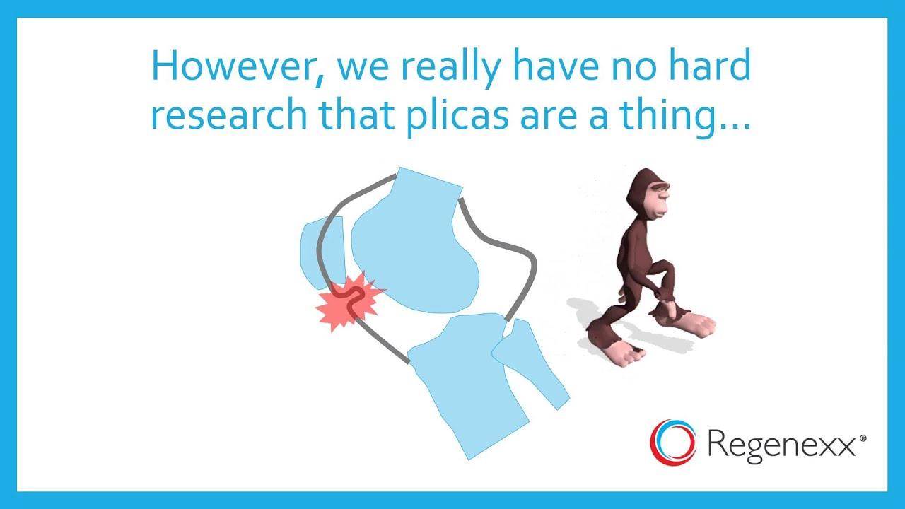 What Is a Plica? The Bigfoot of Orthopedics - Regenexx®