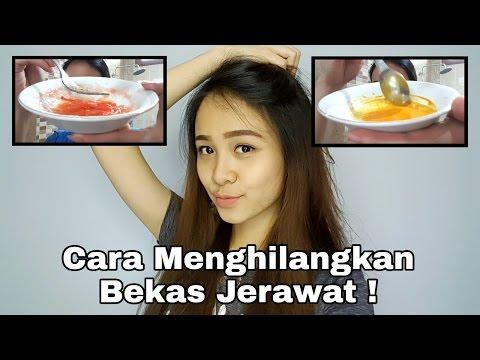 Teh jahe dengan resep bawang putih untuk menurunkan berat badan dan ulasan