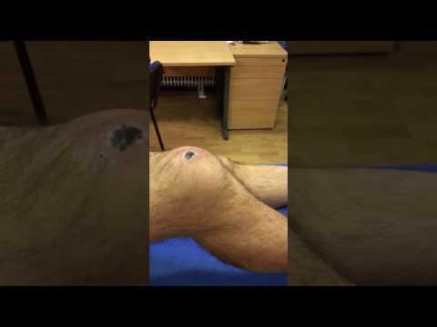 Térdízület kenőcs periarthritis kezelése
