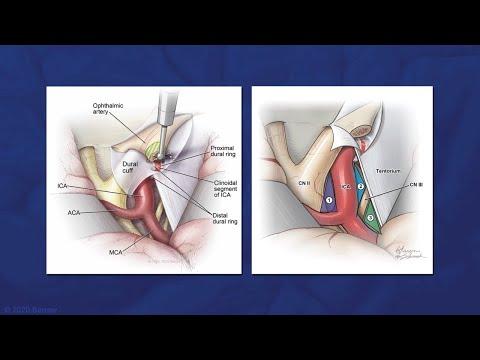 Cauze ale durerii la nivelul articulației șoldului
