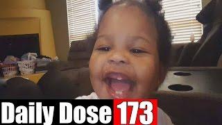 #DailyDose Ep.173 - THREE TEEEEEETH! | #G1GB