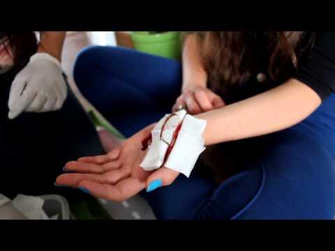 Jak pozbyć się stłuczki na stopie na palucha