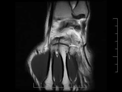 Cirugía de la articulación del hombro cuánto