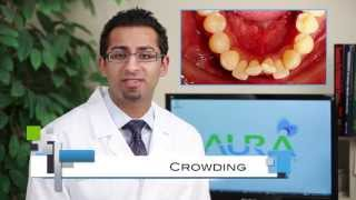 Braces: Common Cases, Crowding, Under Bite, Cross Bite - Aura Orthodontics