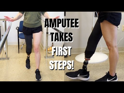 TAKE MY FIRST STEPS WITH ME (AMPUTEE WALKING!)! 🎉 GETTING MY PROSTHETIC LEG!