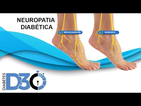 Diabetes tipo 2 tem um tratamento eficaz para comprimidos