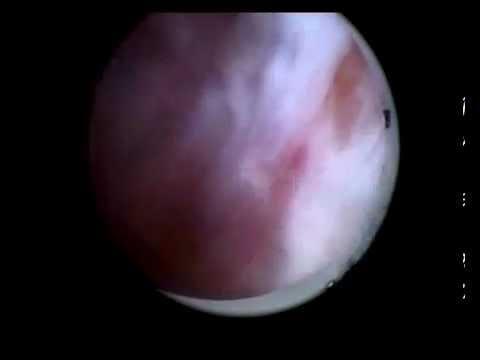 Метод анатолия байдикова от простатита