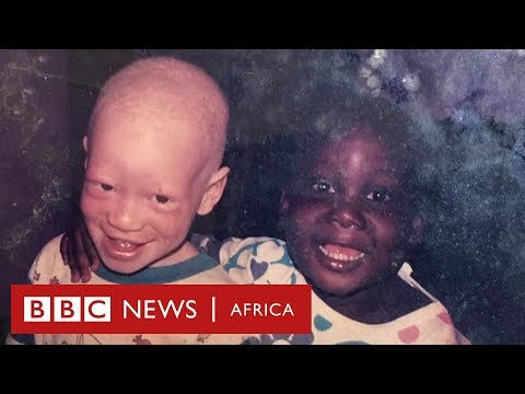 'I have albinism, my twin does not': The family rejecting superstitious beliefs - BBC Africa