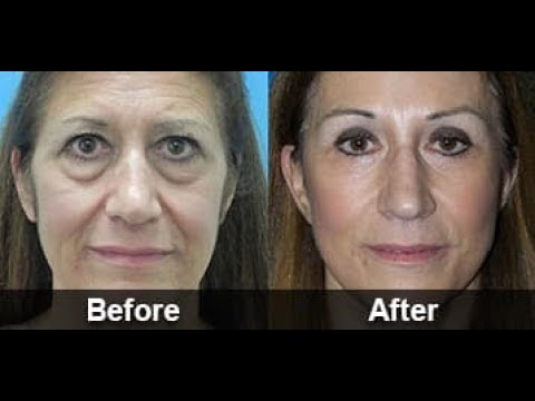 Siccome è spesso possibile fare maschere i pacchi di faccia gelatinosi