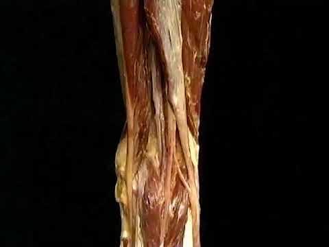 Prevención de la artritis de la rodilla