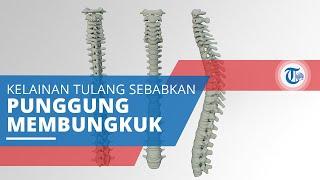 Kifosis, Kelainan Tulang Belakang yang Menyebabkan Penderitanya Mengalami Pembungkukan Punggung