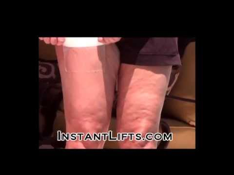 Skinnies Thigh Lifts - 10 Pairs