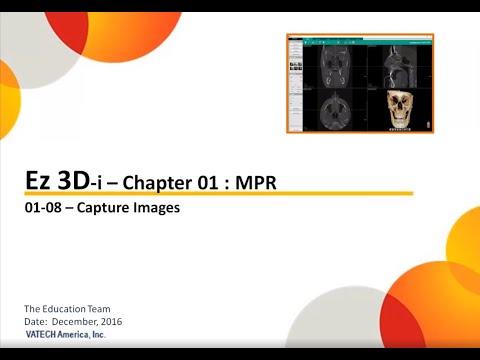 MPR Capture Images