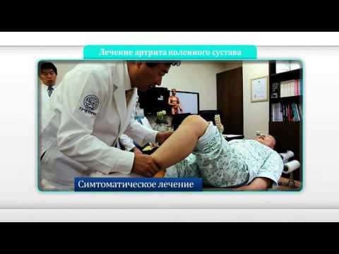 [Уникальные методы] Безоперационное лечение Часэн – артрит коленного сустава