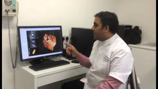 CBCT Scan [Full Mouth CT Scan]