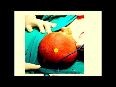 Papilloma breast surgery
