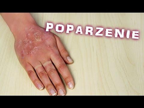 Brązowe plamy pigmentowe w leczeniu organizmu