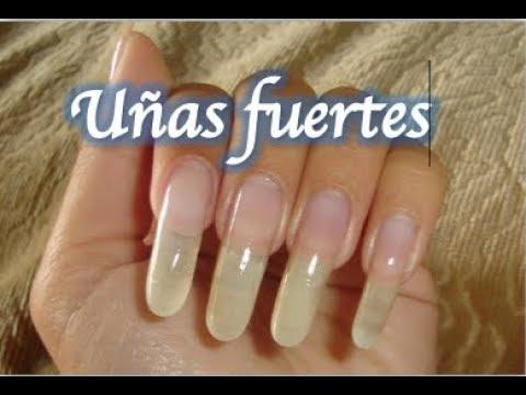 El tratamiento de la psoriasis de las uñas por las medicinas