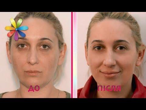 Пигментация кожи классификация