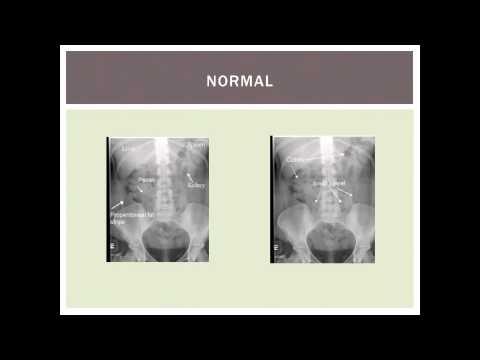 Cancer bucal y tabaco