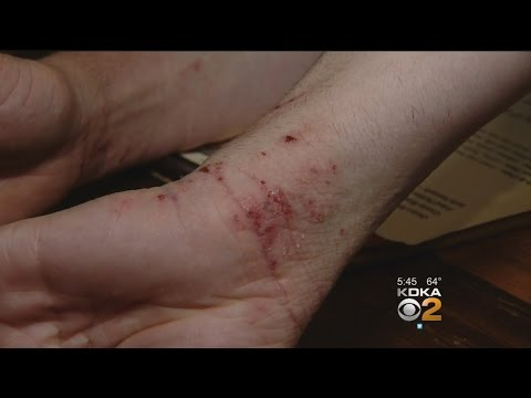 Tratarea articulațiilor frunzelor de arțar