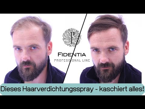 Wieder volles Haar ohne Haarsystem | Transformation mit Mane Haarauffüller Spray