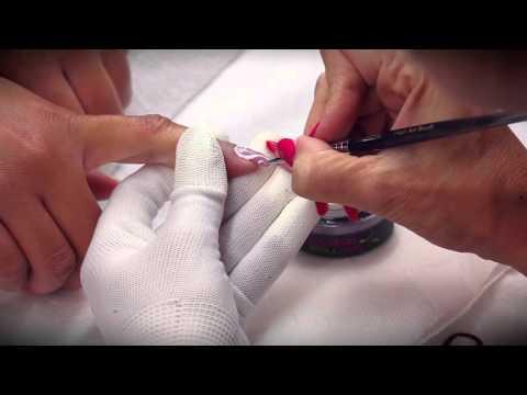 Giardiasis tünetek kezelési áttekintése
