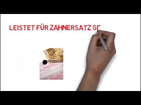 Zahnzusatzversicherung ERGO Direkt Zahnersatz SOFORT schnell erklärt