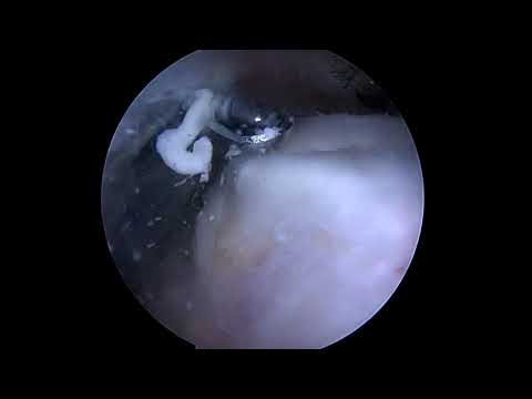 Shoulder Arthroscopy for Calcific Tendinitis