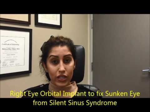 Right Eye Orbital Implant for Sunken Eye (enophthalmos) – Silent Sinus Syndrome Treatment