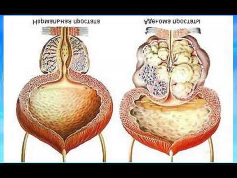 Витафон при аденоме предстательной железы